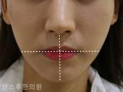 입술비대칭