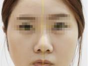 인중과 입술이 한쪽으로 돌아간 비대칭(교정치료+매선)