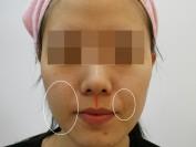 턱비대칭으로 인한 팔자주름과 볼크기차이(매선요법)