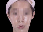 턱비대칭- 휜코 인중 입술
