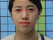 입술 안면비대칭