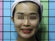 안면비대칭 휜코 입술비대칭
